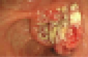青森,青森市,青森県,美容,美容師,スタイリスト,美容室,サロン,美容院,金枝,俊平,かなえだ,しゅんぺい,ブログ,個人メディア,人気,有名,口コミ,評判,お客様の声,ネット,tokio,インカラミ,イルミナ,スロウ,アディクシー,デジタルパーマ,デジキュア,ロボットパーマ,エアウェーブ,応力緩和,ストレートカール,ワンカール,モロッカンオイル,N.,炭酸泉,ヘアビューザー,ヘアビューロン,Instagram,Facebook,Twitter,小顔,ディズニー,Disney,店長,表参道,原宿,青山,渋谷,東北,新町,悩み,欠点,改善,髪質改善,メンズ,髪,ヘア,アレンジ,コテ,おしゃれ,個人店,骨格補正,デザインカラー,グラデーションカラー,バレイヤージュ,ユニコーンカラー,インナーカラー,ハイライト,クセ毛,天然パーマ,天パ,テンパ,プロフェッショナル,ヘアメイク,ヘアケアマイスター,痛まない,傷まない,ツヤ,サラサラ,トリートメント,ヘッドスパ,乾燥,紫外線,パーティ,イベント,セット,アレンジ,アップ,スタイリング,似合わせ,骨格補正,再現性,時短,化粧品,コスメ,指名,ナチュラル,キュート,モード,エレガント,フェミニン,クール,モダン,レトロ,ガーリー,ストリート,可愛い,美,一番,優しい,トレンド,流行,こだわり,モデル,予約,LINE@,Hotpepper,ホットペッパー,メール,コスメパーマ,駅前,駅近,カウンセリング